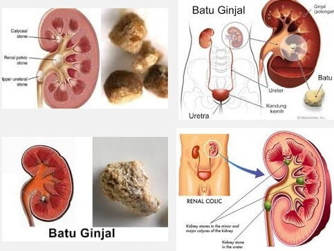 Pola Makan untuk Penderita Batu Ginjal