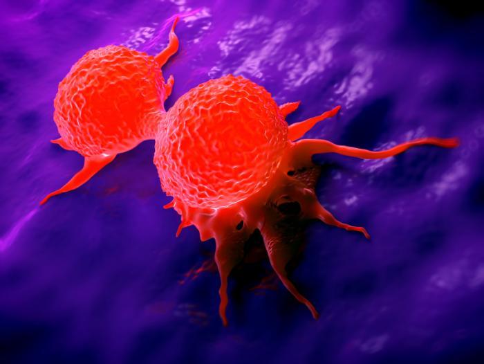 Penjelasan Tentang Perbedaan Tumor dan Kanker